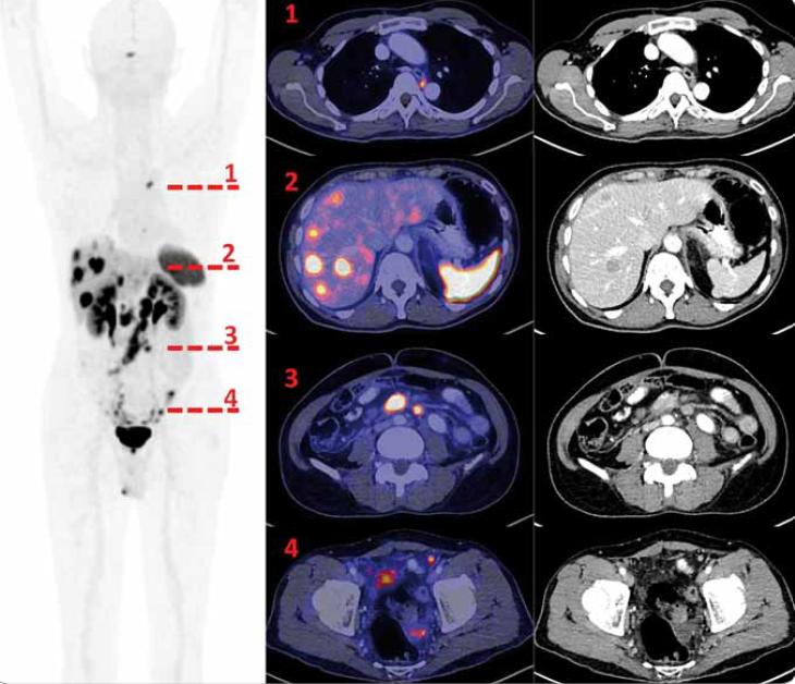 <sup>68</sup>Ga-DOTA-TOC PET/CT vyšetření. Vlevo sumovaná projekce tzv. MIP (maximum intensity projection) PET vyšetření v černobílé barevné škále, červeně jsou označeny úrovně axiálních řezů, které jsou v detailech (PET zobrazení v barevné škále Hot Metal) vpravo. Řada 1 je ve výši dvou drobných splývajících, metabolicky aktivních uzlin mediastina vlevo mezi aortou a jícnem ve výši obratle Th 5. Řada 2 ukazuje některé z četných jaterních metastáz (jen některé však mají na CT korelát) a fyziologickou akumulaci radiofarmaka ve slezině. Řada 3 dokumentuje aktivní, zvětšené uzliny v mezenteriu. V řadě 4 dokumentujeme četná drobná nádorová ložiska v pánvi.