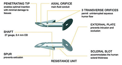 Description of the EX-PRESS implant (Source: Image provided by the manufacturer)