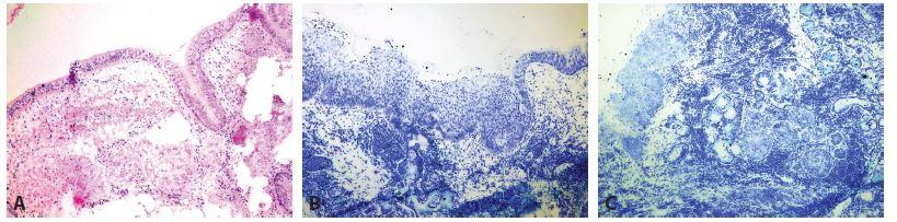 Peroperační bronchiální resekční linie. A: Normální nález (zvětšení 40x, HE). B: High grade dysplázie (zvětšení 40x, Toluidinová modř). C: Mikroinvazivní karcinom a karcinom in situ (zvětšení 40x, Toluidinová modř).