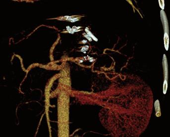 Kontrolní CT angiografie břicha. Zdroj: MUDr. Jiří Novotný Ph.D., Pracoviště radiodiagnostiky a intervenční radiologie, IKEM.<br> Fig. 4. Control CT angiography of abdomen. Source: Jiri Novotny M.D., Ph.D., Radiology and Intervention radiology, IKEM.