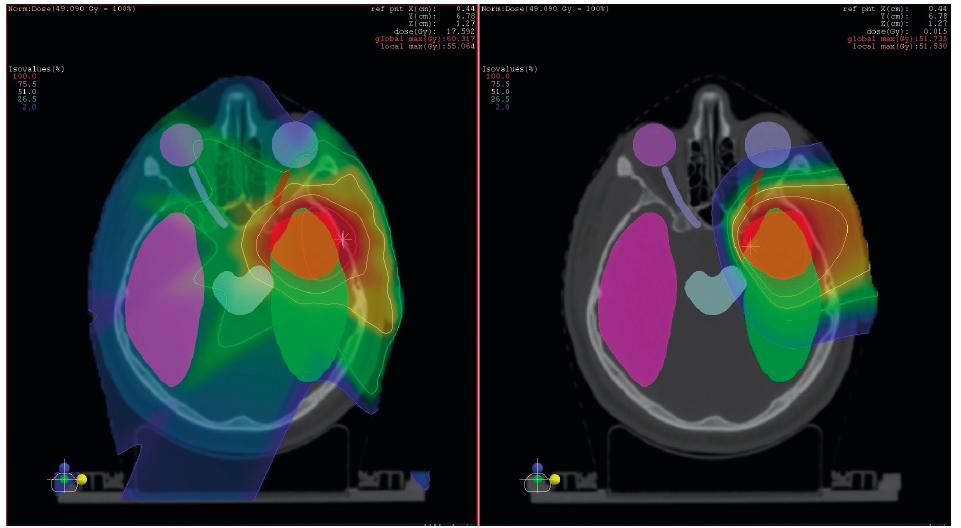 Příklad srovnání ozáření pomocí pokročilé fotonové techniky IMRT (vlevo) a ozáření protonovým svazkem. Cílový objem je označen červeně, v oblasti přítomné kritické struktury pak ostatními barvami. Dávková distribuce je znázorněna barevným spektrem, oblasti s nejvyšší dávkou jsou zobrazeny červeně a postupné snižování dávky směrem k modré barvě. Pokud danou část anatomie nepokrývá žádná barva z barevného spektra (tzv. colorwash), pak není dodávaná dávka žádná. Z obrázku je patrný výrazně větší objem zdravé tkáně, který při fotonovém ozáření ozářen je a při protonovém nikoliv.