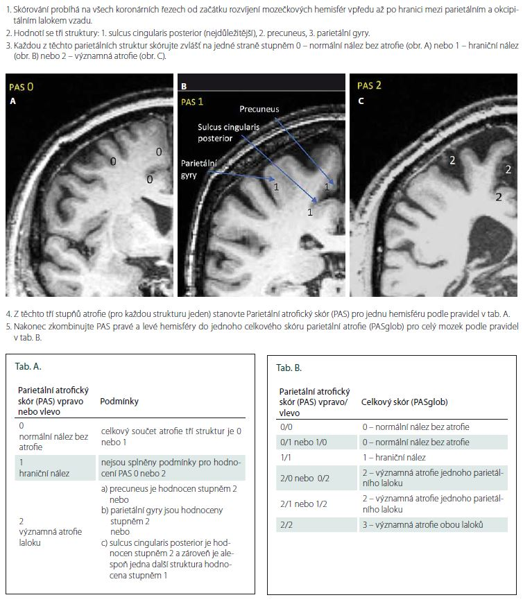 Příloha 1. Postup k určení Parietálního atrofi ckého skóru (PAS) na MR mozku