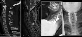 Zlomenina C6 typu B2 – CT sagitální rekonstrukce dokumentuje roztržení trnu C6 a MR s roztržení zadního závěsného aparátu krční páteře a meziobratlové ploténky C6/7. Nativní rentgenové snímky v bočné a předozadní projekci prezentují ošetření zadním přístupem se zavedenými šrouby do massae laterales C4-7 a transpedikulárními šrouby v Th1.<br> Fig. 3: Fracture of of C6 B2 – CT sagittal reconstruction showing disruption C6 spinous process MR with distraction of posterior interspinous ligaments and intervertebral C6/7 disc. X-ray in lateral and anterior-posterior projection prezenting posterior stabilization using massae laterales screw in C4-7 and transpedicular screws in Th1.