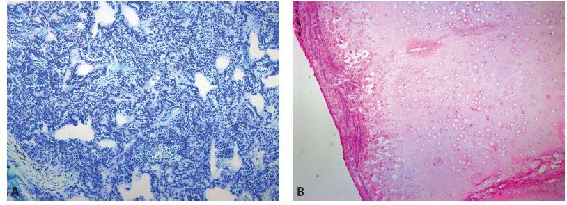 Benigní nádorová ložiska. A: Pneumonocytom (zvětšení 40x, Toluidinová modř). B: Chondrohamartom (zvětšení 40x, HE).