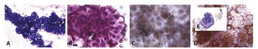 Příklady nejběžnějších karcinóz coelomových dutin: Muž 55 let adenokarcinom plic. Karcinomatózní pleuritis.