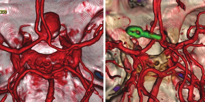 CTA of the anterior communicating artery aneurysm before and after clipping.