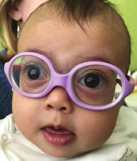 Dysmorfia strednej časti tváre, plytké orbity, pseudoexoftalmus, hypertelorizmus a nízky koreň nosa u pacientky s Marshall/ Sticklerovým syndrómom vo veku 15 mesiacov.