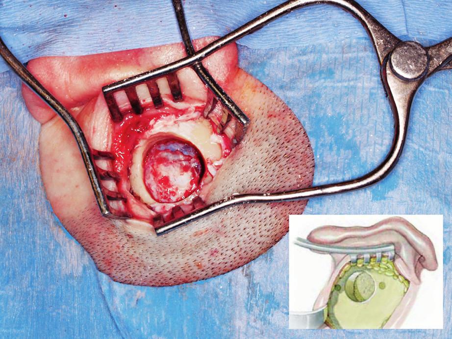 Operace: retrosigmoidní přístup - kostní lůžko pro retrosigmoidní umístění transduceru.