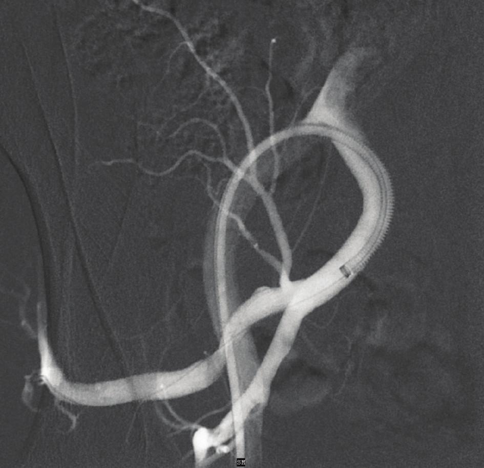 DSA – výsledek po zavedení stentgraftu (plnění vaku aneuryzmatu není patrné)<br> Fig. 3: DSA – outcome after the implantation of the stentgraft (no leak of the contrast in aneurysm sac)