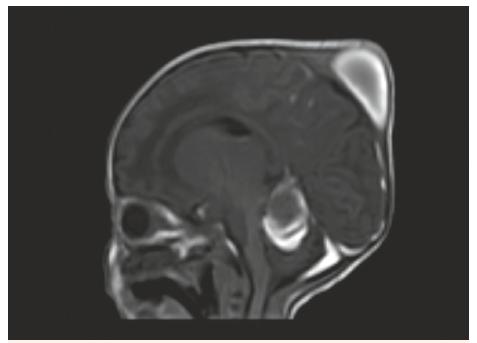 MR vyšetření, sagitální řez – T1W FFE SENSE – stejný pacient jako na obr. 3, 4, 5. Kefalhematom, subakutní subdurální hematom podél tentoria a levé mozkové i mozečkové hemisféry.<br> Fig. 6. MR scan, sagittal view – T1W FFE SENSE – the same patient as No. 3, 4, 5. Cephalhematoma, left sided subacute subdural hematoma.