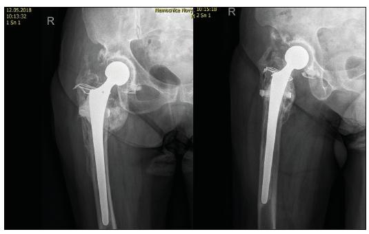 70letá žena s tříštivou zlomeninou trochanterického masivu a nekrózou hlavice femuru, kontrolní RTG po implantaci TEP s dříkem Centrament