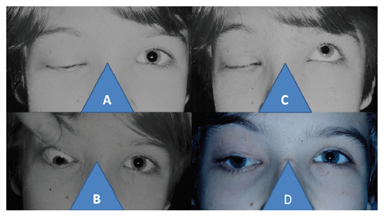 11-letá dívka s pravostranným syndromem kongenitální fibrózy: uzavřena oční štěrbina vpravo (A), hypotropie vpravo při pasivním otevření oční štěrbiny (B), nulová schopnost otevření oční štěrbiny vpravo při snaze o elevaci (C), postavení horního víčka a bulbu vpravo po čtyřech letech od komplexního trojnásobného operačního postupu podle cul-de-sac, podle Knappa, podle Foxe (D)