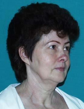 Obr. 1b Táž pacientka ve věku 60 let