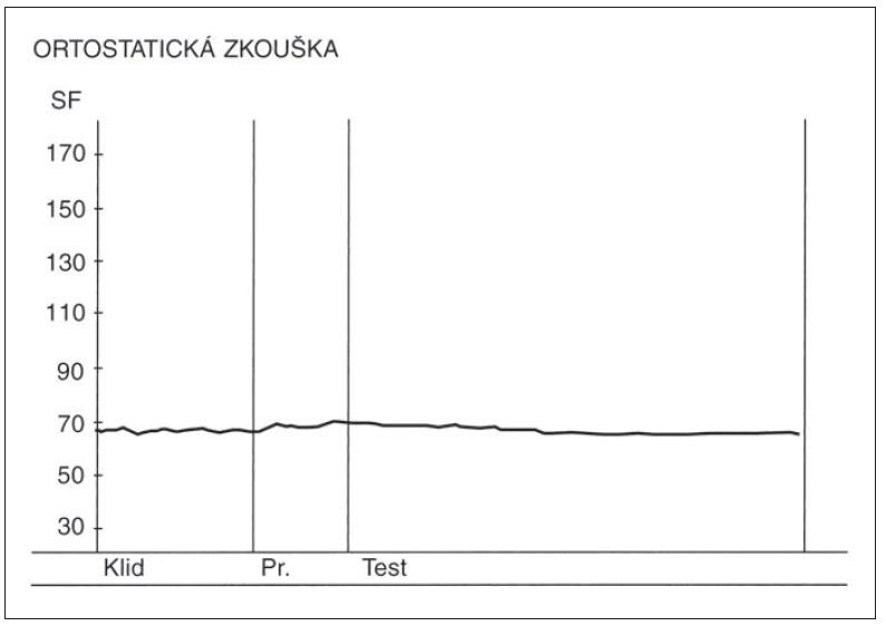 Změny srdeční frekvence (SF) v ortostatické zkoušce u pacienta s těžkou diabetickou autonomní neuropatií. Nad osou x – křivka zobrazující změny srdeční frekvence v ortostatické zkoušce. Vymizení kardioakcelerace a následné kardiodecelerace. Osa y – hodnoty srdeční tepové frekvence za minutu.<br> Fig. 4. Heart rate (SF) changes during the orthostatic test in a patient with severe diabetic autonomic neuropathy. Above the x-axis – curve depicting heart rate changes during the orthostatic test. Absence of cardioacceleration and following cardiodeceleration. Y-axis – heart rate (beats per minute).