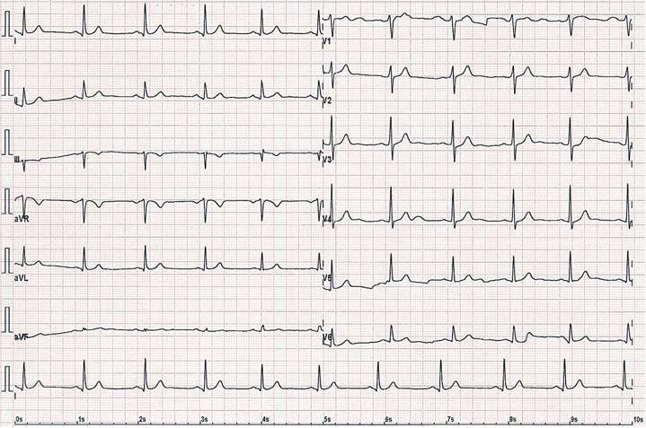12svodové EKG u téhož pacienta po úspěšné radiofrekvenční ablaci přídatné dráhy s vymizením známek preexcitace.