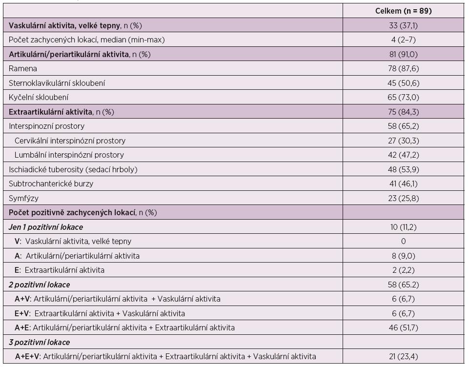 Nálezy při PET, PET/CT vyšetření.