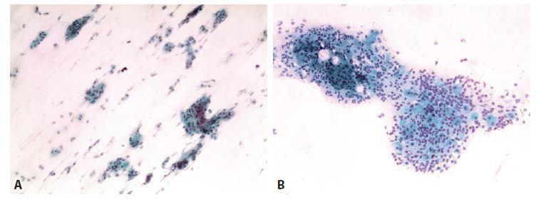 Ilustrační případ 1.<br> A: Klidová fáze. Parabazální buňky jednotlivě a v trsech.<br> B: Počínající maturace. Parabazální buňky s malou příměsí intermediárních.