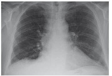 RTG plic po léčbě – nález v regres (10/2018).<br> Fig. 4. Lung X-ray after treatement – regression (10/2018).