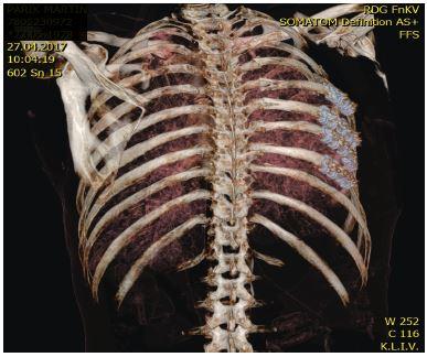 MDCT snímek osteosyntézy čtyř žeber vpravo inovovaným dlahami Judetova typu
