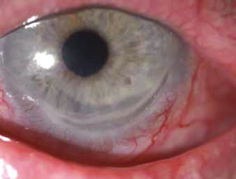 Peripheral ulcerous keratitis – pronounced constriction of cornea, infiltrated cornea