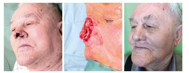 Případ 2 – rozsáhlý kožní nádor špičky a levého nosního křídla: A) stav před operací, B) stav po radikální resekci tumoru, C) stav po dokončení rekonstrukce nosu.