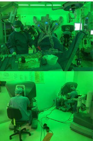 Robotická pyeloplastika u tříměsíčního kojence<br> Fig. 3. Robotoc pyeloplasty in 3 month old infant