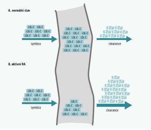 Obr | Koncentrace LDL-cholesterolu v krvi je dána poměrem mezi syntézou a absorpcí/clearance z krevního oběhu. Upraveno dle [21]. V případě absence zánětlivé aktivity (A) je typicky vyvážená rovnováha mezi syntézou a clearance, zatímco v přítomnosti zánětu (B) dochází ke zvýšení clearance a výsledkem je snížení LDL-C.