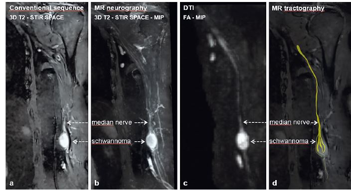Median nerve schwannoma showed using (a) conventional MRI sequence – 3D T2–STIR SPACE, (b) MRN–3D T2–STIR SPACE–MIP reconstruction, (c) DTI–FA–MIP reconstruction and (d) MRT DTI= diffusion tensor imaging; FA= fraction anisotropy; MIP= maximum intensity projection; MRN= MR neurography; MRT= MR tractography; SPACE= sampling perfection with application optimized contrast using varying flip angle evaluation; STIR= short tau inversion recovery; T2= T2 weighted images