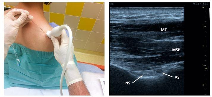Obr. 1, 2 Blokáda n. suprascapularis – zadní přístup. Poloha pacienta, sondy a jehly