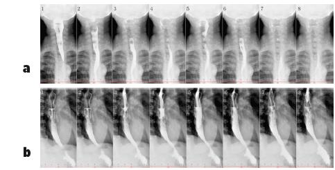 Vyšetření polykacího aktu pomocí RTG jícnu s kontrastem – bariová suspenze (200 ml Micropaque) u pacientky s dysmotilitou jícnu při SSc (z archivu Revmatologického ústavu) Je patrný volně výbavný polykací akt. Horní část jícnu (obr. 3a) není rozšířená a pasáž je volná, na snímku 1 a 2 je dobře patrná projekce osteofytů krční páteře do zadní stěny hypofaryngu. Pod obloukem aorty (obr. 3b) se jícen hypotonicky rozšiřuje a peristaltika je vymizelá, jícen se konicky zužuje k hiátu – kontrastní látka zde stagnuje a žaludek se poté plní užším kanálem.<br> 3a Předozadní projekce, horní část jícnu<br> 3b Boční projekce, dolní část jícnu (včetně části pod aortálním obloukem)
