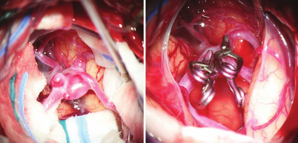 Complex multilobar middle cerebral artery aneurysm before and after clipping.