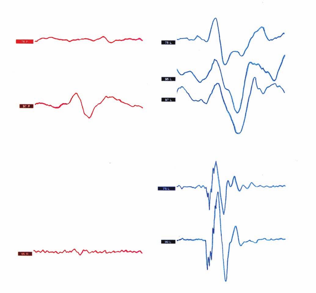 Vestibulárně evokované myogenní potenciály (VEMP). A) Cervikální VEMP vlevo výbavný již na 75 dB, elevace amplitudy VEMP komplexu; B) okulární VEMP – ještě výraznější patologická elevace amplitudy VEMP komplexu vlevo, komplex patologicky výbavný opět i na 75 dB.<br> Fig. 1. Vestibular evoked myogenic potentials (VEMP). A) Cervical VEMP with decreased threshold on the left side at 75 dB with increased amplitude of the VEMP complex; B) ocular VEMP also have lower thresholds and increased amplitudes, even to a greater extent than observed in cVEMP responses at 75 dB.