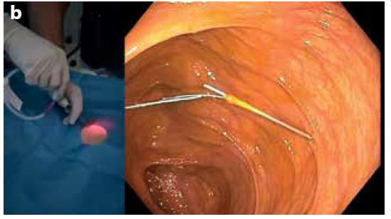 Obr. 2b. Zavedení vodiče jehlou (vlevo); posunutí kotvy do lumen tlustého střeva (vpravo)<br> Fig. 2b. Wire insertion through the needle (left); shifting the anchor into the colon lumen (right)