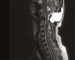 MR vyšetření (T2 vážený obraz) expanzivně se chovající likvorové pseudocysty po operaci zadní jámy lební – zahojení nálezu si vyžádalo dvě reoperace<br> Fig. 1: MR image (T2W) of cerebrospinal fluid pseudocyst after posterior fossa surgery with expansive behaviour – two reoperations were needed to achieve successful healing