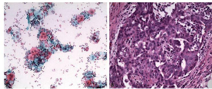Serózní karcinom high grade. A: Trsy atypických buněk v mírně zánětlivém pozadí. Polychrom 200x. B: Histologicky nález potvrzen.