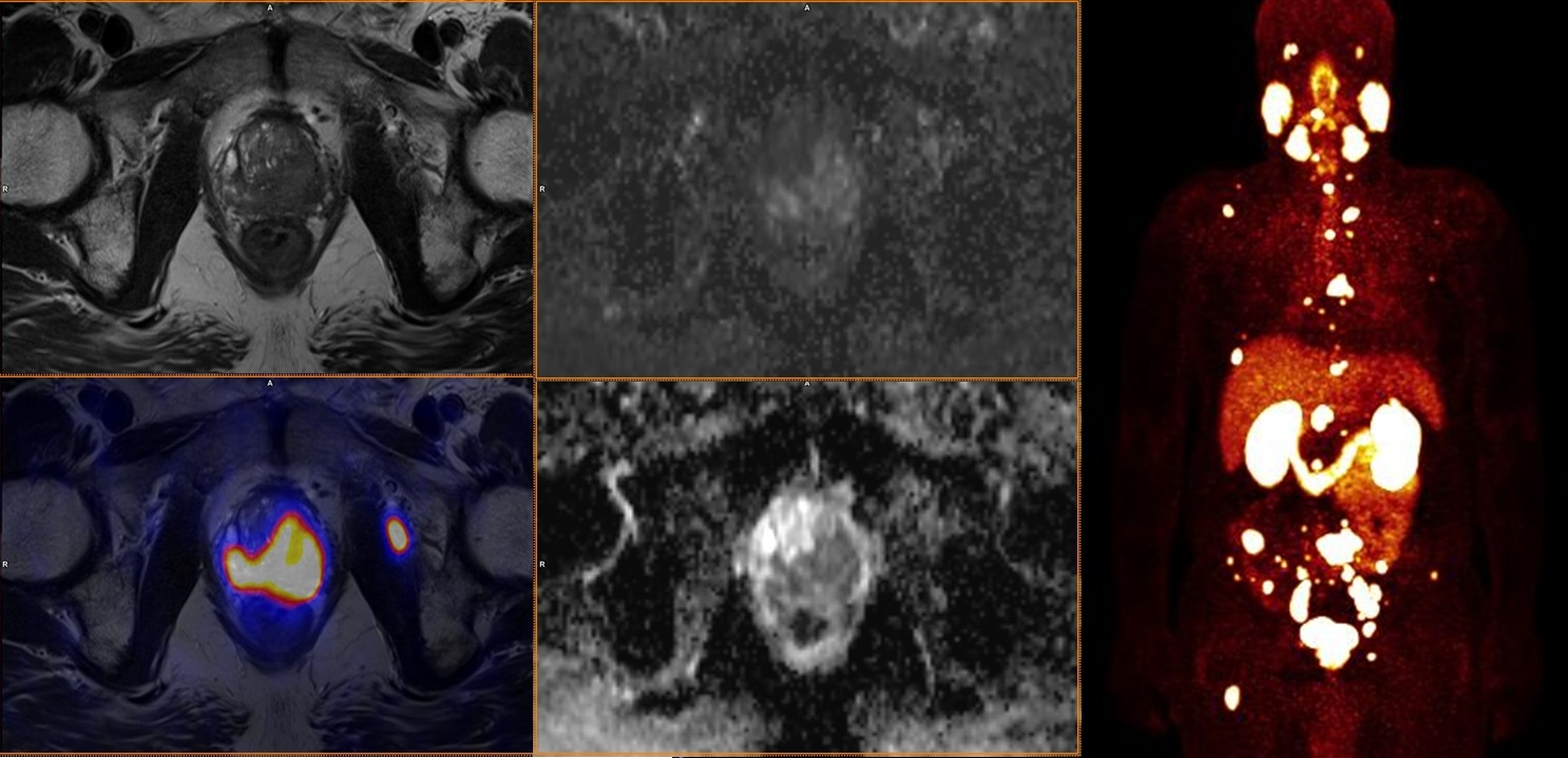 Staging high-grade karcinomu prostaty (Gleasonovo skóre 9) pomocí <sup>68</sup>Ga-PSMA-11.