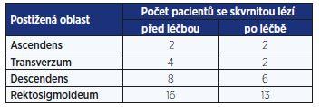 Třídy intenzity infekce u geohelmintů měřené počtem vajíček v 1 gramu stolice (EPG)