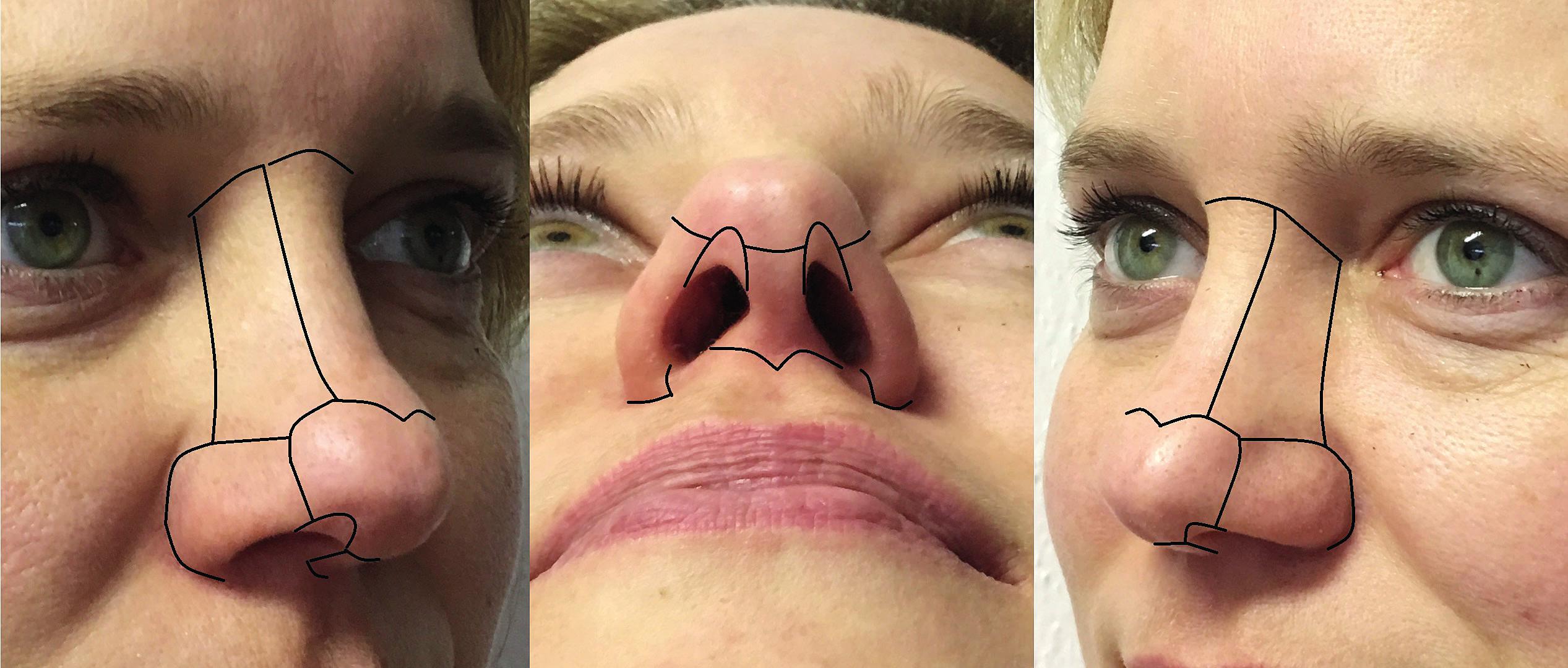 Estetické podjednotky nosu dle Burgeta a Jenička. (Fotografie jsou publikovány se souhlasem pacientek.)