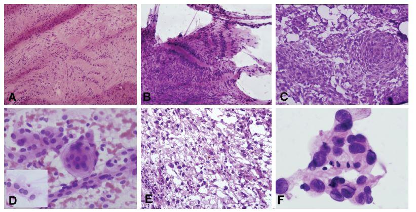 (A, B) Tumor pontocerebelárneho uhla u 53-ročného muža. V zmrazenom reze bola zachytená lézia bohatá na kolagénnu matrix a vretenitými bunkymi s hyperchrómnymi pretiahnutými jadrami s naznačeným rytmickým/palisádujúcim usporiadaním (A). V náterovej cytológii prítomné iba zhluky tkaniva (žiadne izolované bunky) zloženého z vretenitých buniek s tmavými jadrami, palisádovanie však bolo ložiskovo ešte výraznejšie ako v zmrazenom reze (B). Peroperačná a definitívna diagnóza: schwannóm. (C, D) Tumor pontocerebelárneho uhla u 48-ročnej ženy. V zmrazenom reze je zachytená solídna proliferácia epiteloidných buniek, s naznačenými vírovitými formáciami (C). V náterovej cytológii monotónna blandná populácia epiteloidných kohezívnych buniek (spojené širokým pruhom cytoplazmy), ložiskovo s typickým vírovitým usporiadaním a jadrovými pseudoinklúziami (vložený obrázok) (D). Peroperačná diagnóza: meningióm. Definitívna diagnóza: meningoteliálny meningióm, grade I. (E, F) 62-ročná žena so solídno-cystickým tumorom hemisféry mozočka. V zmrazenom reze bola zachytená nádorová lézia tvorená bunkymi s vakuolizovanou cytoplazmou a atypickými hyperchrómnymi jadrami (E). V náterovej cytológii kohezívne fragmenty tvorené epiteloidnými bunkami s atypickými jadrami a jemne vakuolizovanou cytoplazmou (F). Peroperačná a definitívna diagnóza: hemagioblastóm.