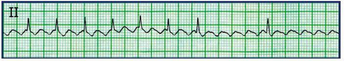Typický flutter síní blokovaný 2 : 1 a jeho demaskování po podání adenozinu i.v.