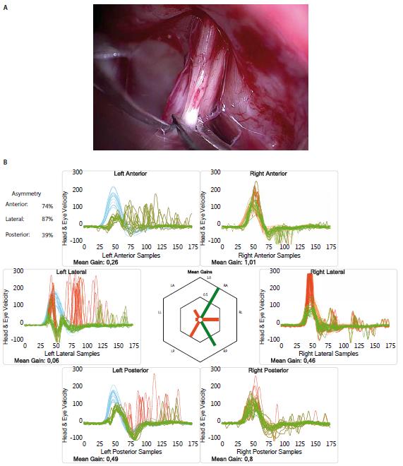 (A) Snímek zachycující oddělení vestibulárního nervu vlevo a přípravu na jeho přerušení. (B) Výsledky vHIT po provedené vestibulární neurektomii vlevo ukazující korekční couvert a ouvert sakády při stimulaci levých semicirkulárních kanálků a snížený gain, značící úspěšné a kompletní přerušení vestibulárního nervu.<br> Fig. 2. (A) The picture shows separation of the left vestibular nerve and preparation for its section. (B) Results of vHIT following vestibular neurectomy on the left side show corrective covert and overt saccades and decreased gain upon stimulation of the left semicircular canals, which means successful and complete section of the vestibular nerve.