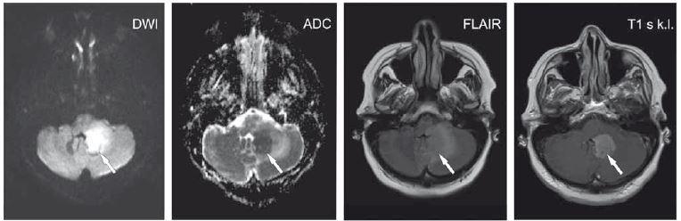 Pacientka ve věku 62 let s expresivní afázií, centrální lézí n. VII. vpravo a pravostrannou hemiparézou. V levé mozečkové hemisféře je patrné ložisko (šipky) při IV. komoře, která je mírně dislokována doprava. Je patrný DWI hypersignální okrsek s ADC hyposignálním korelátem. Na FLAIR je ložisko lehce hypersignální s kolaterálním edémem. Po aplikaci kontrastní látky se léze homogenně nasytila. Další obdobné ložisko temporo-parieto-okcipitálně vlevo. Lymfom.<br> ADC – aparentní difuzní koefi cient; DWI – difuzí vážený obraz; FLAIR – inverzní zobrazení s potlačením signálu tekutiny; k. l. – kontrastní látka<br> Fig. 3. A 62-year-old woman with expressive aphasia, a central lesion of the seventh cranial nerve on the right side, and right-sided hemiparesis. The lesion is apparent in the left cerebellar hemisphere (arrows) alongside the fourth ventricle that is dislocated slightly to the right. DWI hypersignal area with an ADC hyposignal corresponding area is seen. The lesion is slightly hyper-signal on FLAIR with collateral edema. Homogeneous enhancement was seen after contrast administration. Another similar lesion is temporo-parieto-occipitally on the left. Lymphoma.<br> ADC – apparent diffusion coefficient; DWI – diffusion-weighted image; FLAIR – fluid attenuated inversion recovery; k. l. – contrast agent