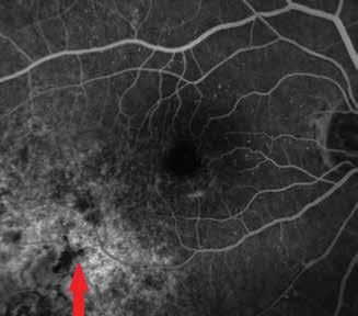 Fluoresceínová angiografia nádorového ložiska o 4 roky neskôr v r. 2017