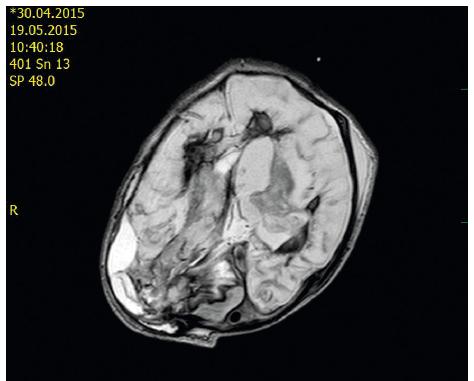 MR vyšetření bylo provedeno 15. den po dekompresivní kraniotomii u téhož pacienta: Signálové změny ve FLAIR obrazech na axiálním řezu odpovídají subakutnímu hematomu P-O vpravo po evakuaci, krvi v obou postranních komorách s podílem rozvíjejících se malatických změn oboustranně. Je patrná asymetrie kalvy – v souvislosti s kraniotomií a polohou hlavy, hematom P-O vpravo.<br> Fig. 2. MR scan – day 15 after decompressive craniotomy – the same patient: Signal changes in FLAIR are indicative of subacute intraparenchymal hematoma right P-O after evacuation and blood in both lateral ventricles, malacic changes bilaterally.