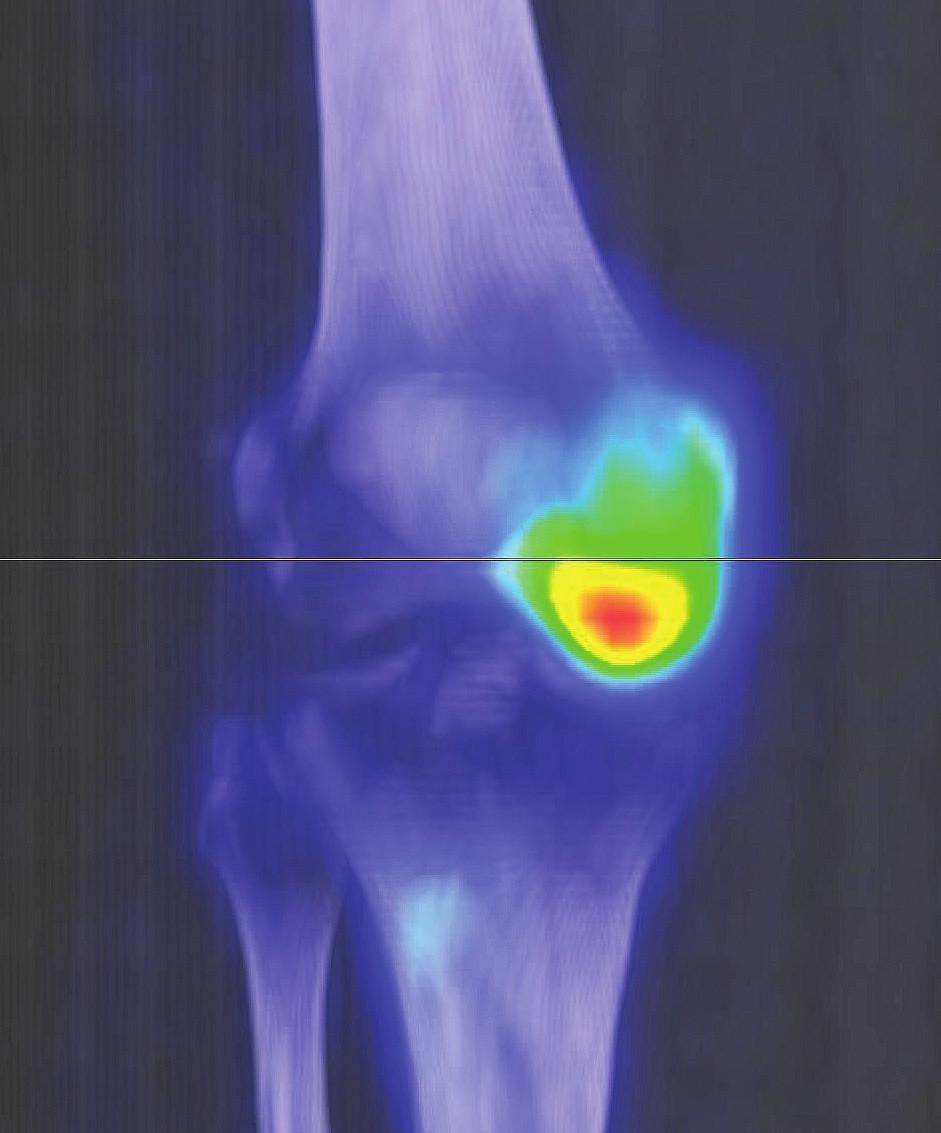 Sumarizace nálezů <sup>18</sup>F-FDG PET/CT vyšetření u pacienta č. 4. Černobílé MIP projekce ukazují rozsah snímání, odráží i rozsah kostního postižení. Fúzované obrazy pak ukazují detaily kardiovaskulárního, retroperitoneálního, paranasálního, orbitálního i kostního postižení.