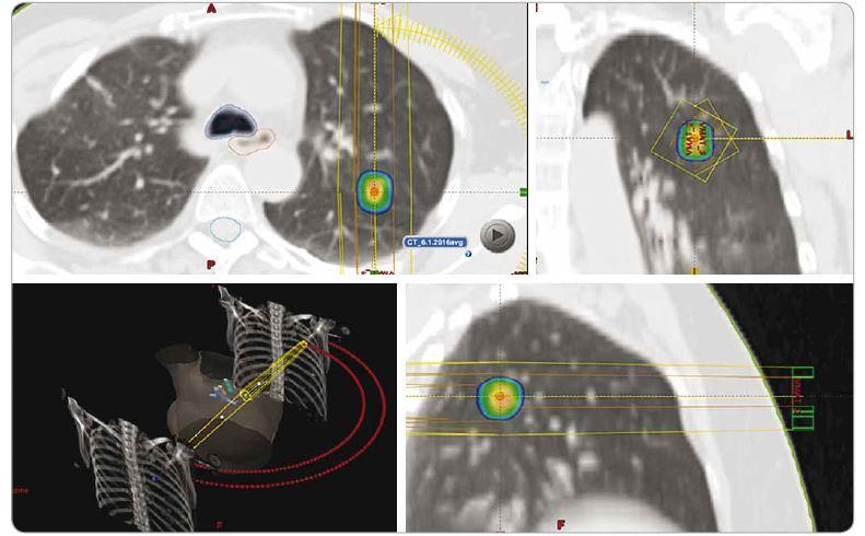 Dávková distribuce při SBRT solitární metastázy pravé plíce invazivního duktálního karcinomu pravého prsu, dávka 3 × 18 Gy, předpis dávky na 80% izodózu. PTV 5,9 ccm, D min. 51 Gy, D max. 70,7 Gy.<br> SBRT – extrakraniální stereotaktická radioterapie, PTV – plánovací cílový objem, D – dávka záření, Gy – Gray