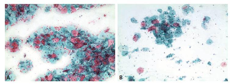 Ilustrační případ 4.<br> A: Cytogram generačního období. Intermediární a eozinofilní superficiální buňky. Vliv estrogenů je jak pro uvažovaný 4. den cyklu, tak pro 24. den cyklupříliš vysoký.<br> B: Cytogram 13. dne cyklu. Těsně ke dni ovulace je vliv estrogenů nízký. Polymenorea korigována. Kombinovaná hormonální léčba (Estrofem®a Provera®) trvá.