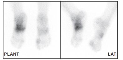 Třetí fáze u téhož pacienta ukazuje zvýšený metabolický obrat kostní tkáně v místě zvýšeného prokrvení – nález typický pro CHOAP.