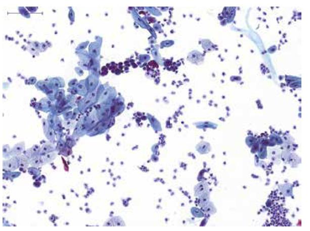 Spontánně vymočená moč od pacienta s mikroskopickou hematurií; přítomny jsou normální urotelie z různých vrstev sliznice a četné neutrofilní leukocyty, nález odpovídá akutnímu zánětu ve vývodných močových cestách; kategorie: NHGUC.