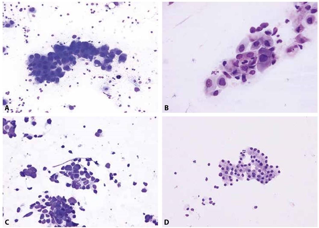 Základní diagnostické jednotky maligních epitelových nádorů plic.<br> A – metastatický adenokarcinom s excentricky umístěnými jádry a místy patrnou vakuolizací cytoplazmy (EBUS-FNA mediastinální lymfatické uzliny; Diff- -Quik®, 400x)<br> B – otisk excize endobronchiálně rostoucího dlaždicobuněčného karcinomu s denzní plachtovitou cytoplazmou a nepravidelnými jádry s hrubým chromatinem (Diff-Quik®, 400x)<br> C - metastáza malobuněčného karcinomu, charakteristického skupinkami menších buněk s úzkým cytoplazmatickým lemem a arteficiální deformací jader (perkutánní tenkojehlová aspirace subklavikulární lymfatické uzliny; Diff-Quik®, 400x)<br> D – karcinoid bronchu - poměrně uniformní buňky s bazofilní jemně granulární cytoplazmou, tvořící trabekuly (rozlišení mezi typickým a atypickým karcinoidem není z cytologického vyšetření možné) (nátěr z endobronchiálního aspirátu; Giemsa, 200x)